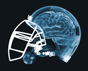 Helmet and Brain